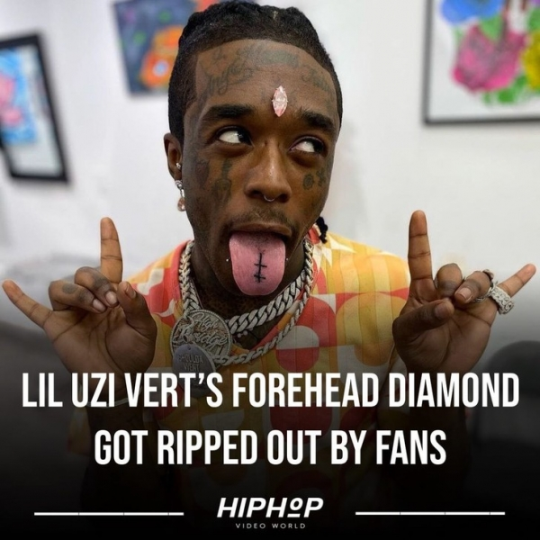 Фанаты рэпера Лил Узи Верт опять стащили его розовый бриллиант со лба